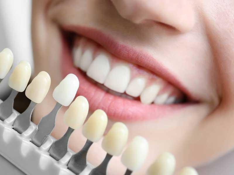 Dentista em Florianópolis Restauração Estética