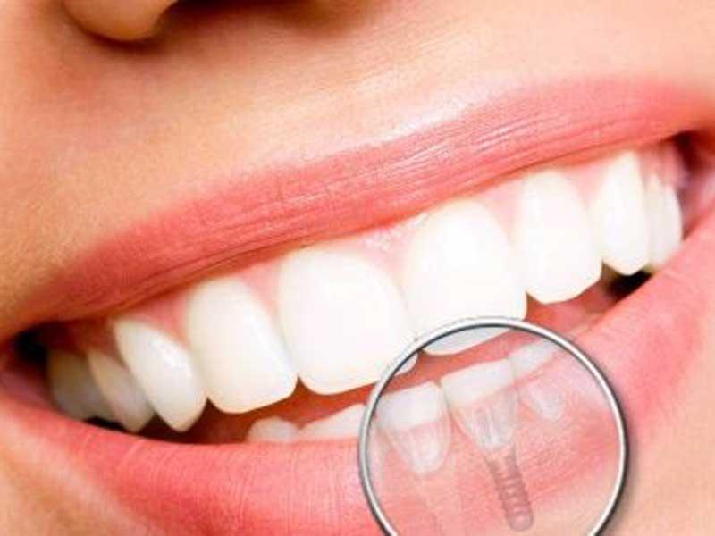 Implante Dentário em Florianópolis Clinica Odontologica Clinica Dentaria