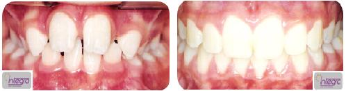 Caso de correção de mordida cruzada, inicialmente em dentição mista.
