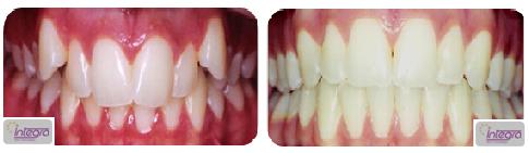 Caso de falta de espaço e sobremordida excessiva em dentição permanente.