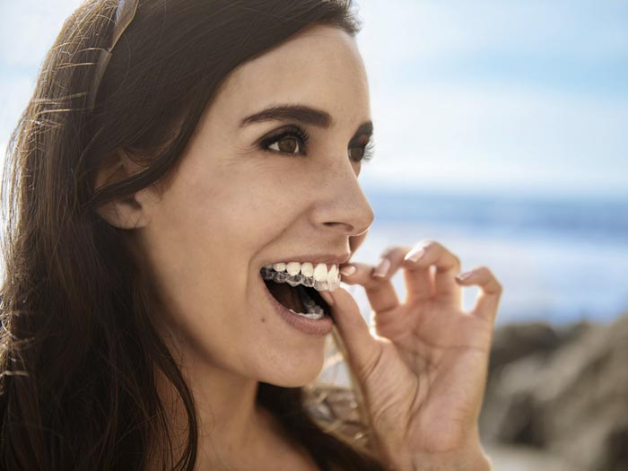 Aparelho Dentário Invisível Invisalign em Florianópolis
