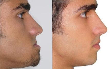 Cirurgia Ortodontica Ortodontia Cirúrgica
